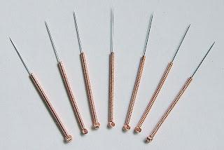 acupuntura-tratamiento-infertilidad