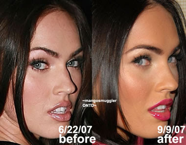 Funny Picture Megan Fox Plastic Surgery Before Amp After Pictures 2012