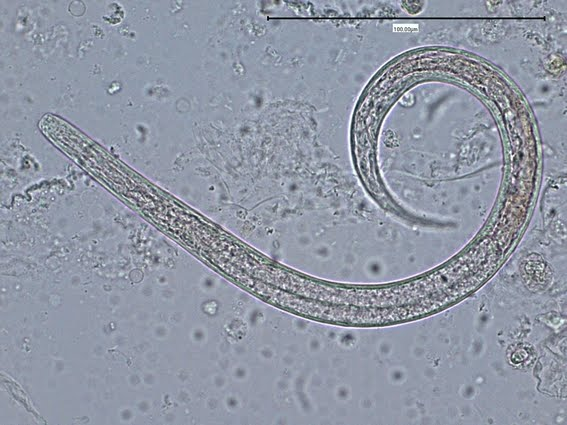 Strongyloides stercoralis worm in sputum Strongyloides Stercoralis