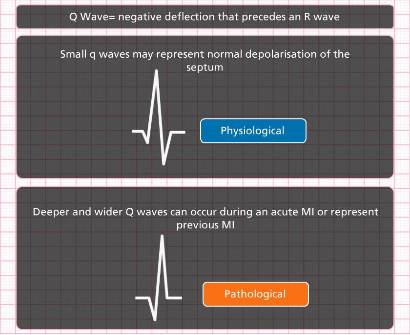 case study of an acute mi event It may be reproduced in whole or in part for study or training purposes subject to  the inclusion of  3 a patient with an acute st-segment-elevation myocardial  infarction (stemi)  evidence-based assessment of their risk of an adverse  event.