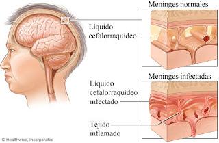 Qué es la meningitis? Sus síntomas, transmisión y