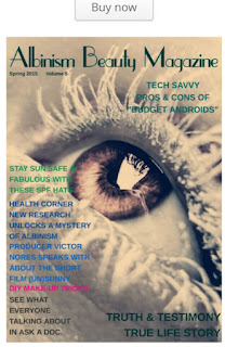 http://albinismbeautymag.weebly.com/