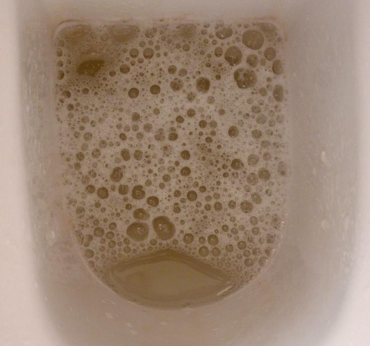 Stool Test For Prostate Cancer