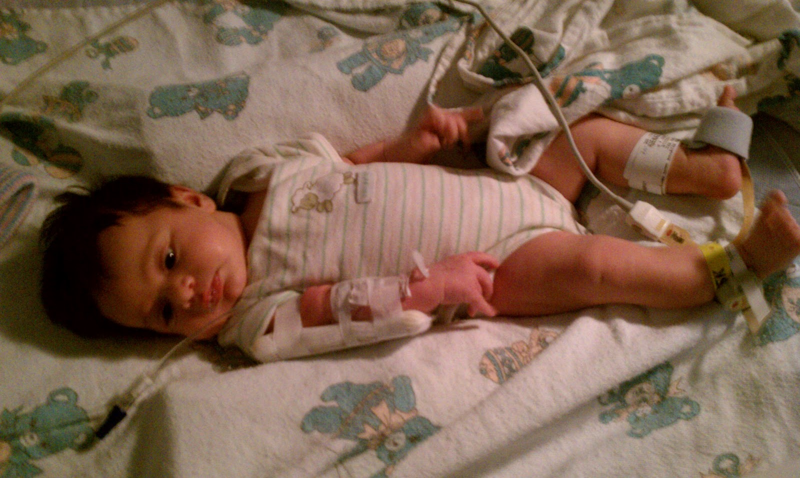 How To Treat Gerd In Infants Naturally