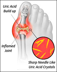 natural remedies to lower uric acid level reduce uric acid crystals naturally diet prevent gout
