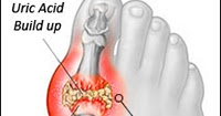 root cause of high uric acid medication for treatment of gout excision gouty tophi cpt
