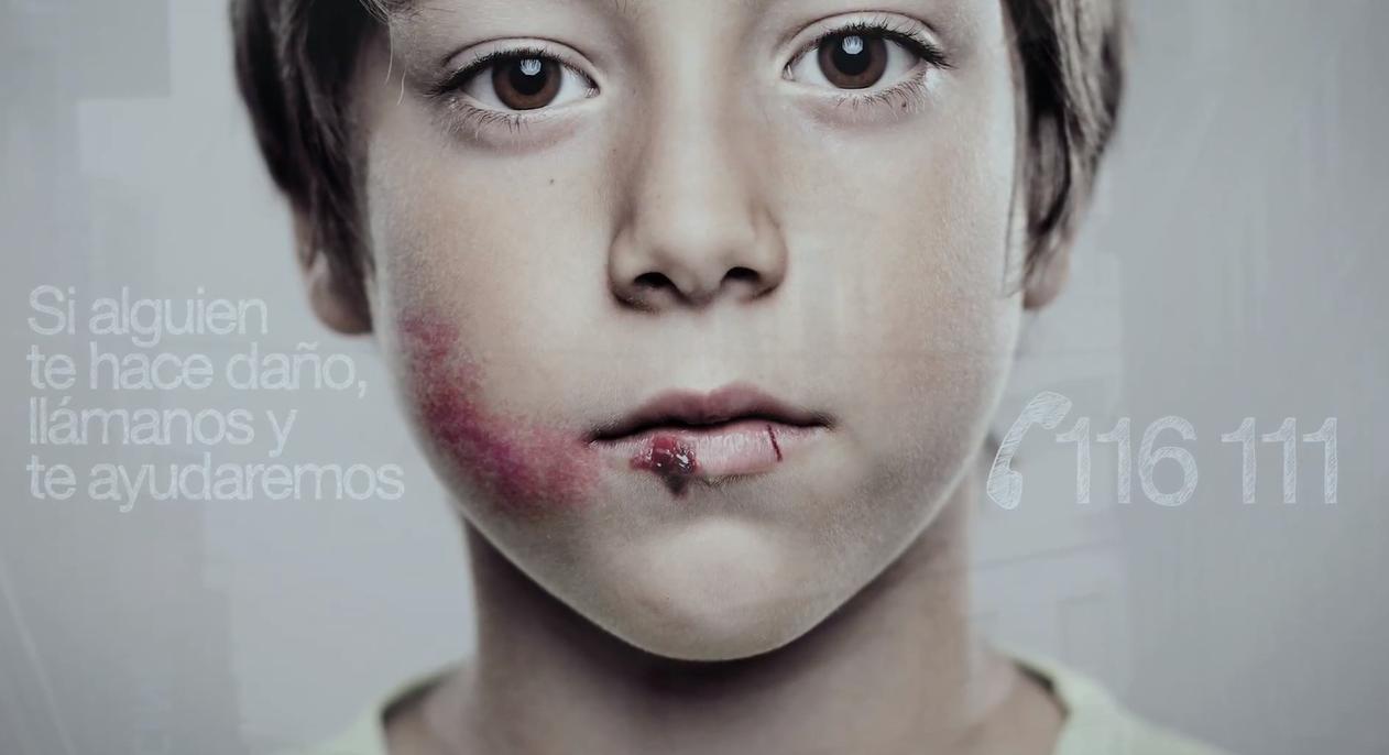 Mpgs de abuso facial