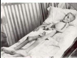 ΒΙΝΤΕΟ ΣΟΚ -- ΤΑ ΠΕΙΡΑΜΑΤΟΖΩΑ ΤΟΥ ΧΙΤΛΕΡ Τα φρικιαστικά πειράματα των ναζί