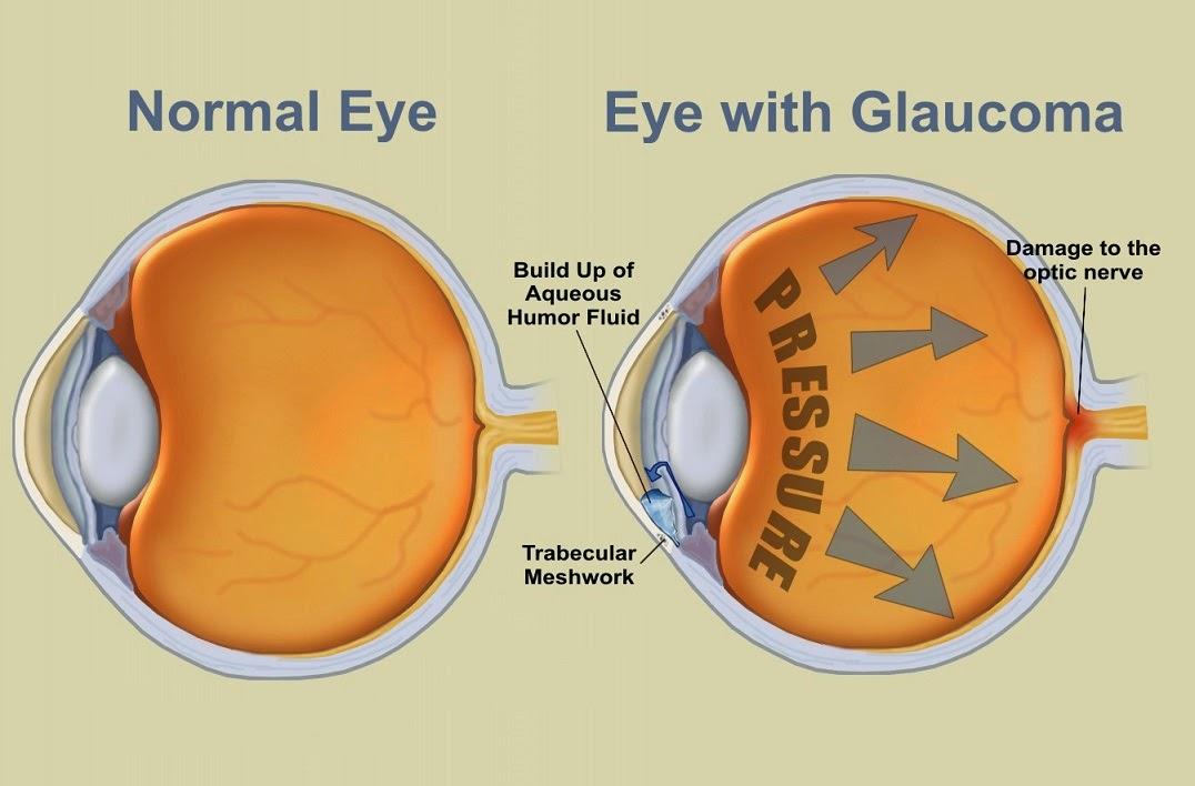 Pengertian Penyakit Glaukoma, Penyebab, Gejala, Jenis dan Pengobatan