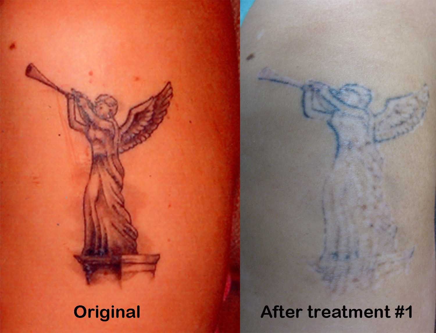 Laser Removal Tattoo