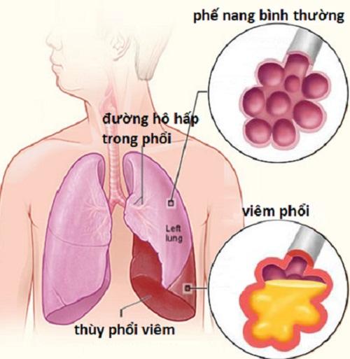 Chăm sóc bệnh nhân phù phổi cấp