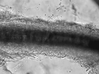 Parazitinių grybelių sporų sankaupos, matomos aplink užkrėstą plauką (40x padidinimas)