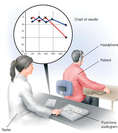 「聽力檢查」的圖片搜尋結果