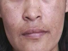 La prevención de las manchas de pigmento