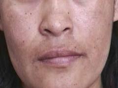 Las manchas de pigmento la desaparición al cosmetólogo
