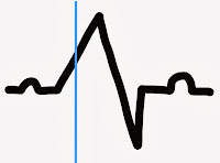 Ectopic Heart Beat ECG