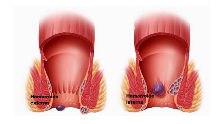 Medicina natural hemorroides causas y remedios naturales y caseros - Banos de asiento para hemorroides ...
