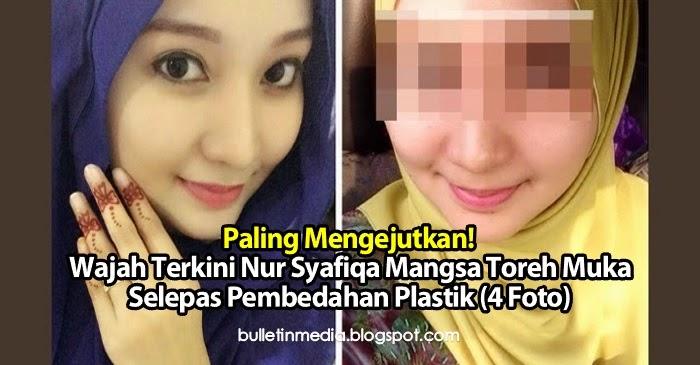 Paling Mengejutkan! Wajah Terkini Nur Syafiqa Mangsa Toreh Muka Selepas Pembedahan Plastik (4 Foto)