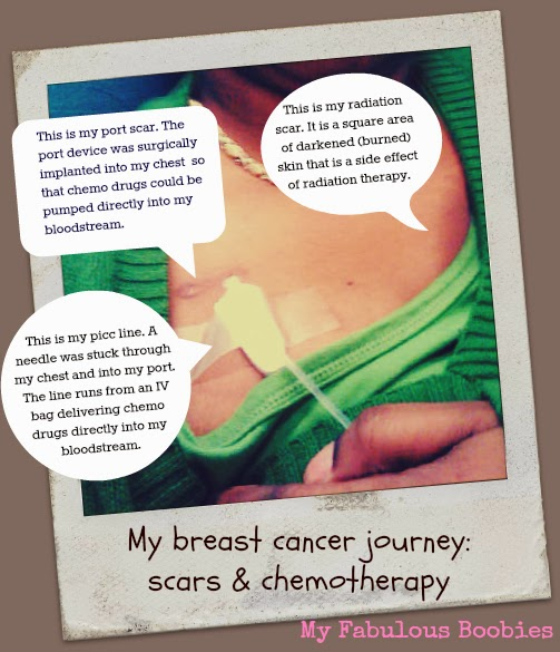 breast cancer scars infographic (My Fabulous Boobies blog)