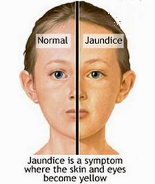 Jaundice Jaundice is a symptom of many medical problems but it is most often associated with conditions of the liver or the gallbladder.   Jaundice causes yellow skin and eyes because of an excess amount of the bile pigment bilirubin in the fat layer under the skin. Either the body is producing too much, or it's not getting rid of it fast enough.  Jaundice is caused by the fact that fetuses have a different kind of red blood cell than adults. They are just getting rid of these cells around the time of birth, which releases a lot of bilirubin. Newborns also temporarily lack sufficient amounts of the enzymes that break down bilirubin. With time, the liver cells mature and are able to rid the body of excess bilirubin, and the jaundice will disappear.  Normally, large amounts of blood flow each minute through the liver, which may be thought of as the body's chemical processing plant. The liver breaks down old, inefficient red blood cells in a process called hemolysis. This releases large amounts of bilirubin. The liver also manufactures the other components of bile.  Bile is a greenish-yellow fluid secreted by the liver that contains cholesterol, bile salts, and waste products such as bilirubin. The bilirubin leaves the liver via the bile ducts to be stored in the gallbladder directly underneath. It's then slowly released into the intestine from the gallbladder. It helps digest food in the intestine and exits the body in the stool.  Causes of Jaundice  Too much bilirubin can be toxic and can cause jaundice. Therefore, it's important to eliminate it from the body as fast as it's produced. There are three basic ways this process can go wrong:  The liver itself can be temporarily or permanently damaged, reducing its ability to break down bilirubin (mix it with bile) and move it into the gallbladder.  The gallbladder or its bile ducts can become blocked, preventing excretion of bilirubin into the intestine. Bilirubin will then back up into the liver and then into the bloodstream.  Any condition that leads to very rapid destruction of red blood cells can create too much bilirubin for even a healthy liver to handle. Again, the excess is carried into the bloodstream.  Causes of jaundice due to poor liver function:  Viral hepatitis: Hepatitis A, B, C, D, and E can all cause temporary liver inflammation. Types B and C can also cause chronic, lifelong inflammation.  Medication-induced hepatitis: This may be caused by alcohol, erythromycin*, methotrexate, amiodarone, statins (e.g., lovastatin, pravastatin, rosuvastatin), nitrofurantoin, testosterone, oral contraceptives, acetaminophen, and many other medications.  Autoimmune hepatitis: In this condition, the body's immune system attacks its own liver cells. Autoimmune hepatitis is more common in people and families with other autoimmune diseases, such as lupus, thyroid disease, diabetes, or ulcerative colitis. Primary biliary cirrhosis is another autoimmune condition of the liver and involves inflammation of the bile ducts.  Alcoholic liver disease: This involves damage to the liver caused by excessive, long-term consumption of alcohol.  Gilbert's syndrome: This harmless inherited condition is quite common, affecting about 2% of the population. Minor defects in the liver's metabolism of bilirubin cause jaundice to appear in times of stress, exercise, hunger, or infection.  Causes of jaundice due to obstruction  - blockage:  Gallstones: Formed in the gallbladder, gallstones can block the bile ducts, preventing bile (and bilirubin) from reaching the intestine. Sometimes, the bile ducts may become infected and inflamed.  Cholestasis of pregnancy: Abdominal pressure closes ducts between the liver and gallbladder, or between the gallbladder and intestine. Jaundice is common during pregnancy.  Tumors: These may be in the liver, pancreas, or gallbladder. They are occasionally responsible for obstruction.  Causes due to excessive red blood cell destruction (hemolysis):  Malaria: The liver destroys red blood cells infected with the parasite.  Hemolytic anemia: This includes conditions such as sickle cell disease and thalassemia. It may also be an autoimmune condition.  Newborn jaundice: This condition is found in many newborn babies.  Symptoms and Complications of Jaundice  When you are jaundiced, your skin and the whites of your eyes are yellow. Sometimes, people who eat a lot of carrots or beta-carotene tablets take on a yellowish color. This is called Carotenemia, and can be easily distinguished from jaundice because the whites of the eyes don't turn yellow.  Other symptoms depend on the cause of jaundice. If a fever or flu-like illness comes before jaundice, it's usually a sign of a viral hepatitis infection.   Brown urine, common in hepatitis, is generally a sign of poor liver function or increased red blood cell destruction. The body is trying to get rid of excess bilirubin in the urine.   Pale, white, or clay-colored stool, on the other hand, is an indicator of obstruction in the gallbladder or bile ducts.   Many people with obstruction due to gallstones experience abdominal pain, while those with obstruction due to tumors usually have painless jaundice.  Jaundice itself is unlikely to hurt you unless the bilirubin reaches very high concentrations. It is a sign, however, of an underlying problem. There are too many possible causes of jaundice to attempt diagnosis at home. You should see a doctor if you think you have jaundice.  Investigations for  Jaundice  LFT  USG: Abdomen  Treatment  The approach is to treat the underlying cause, if possible. Some of the medical problems that cause jaundice are curable,   Homeopathy Treatment for Jaundice  Symptomatic Homeopathy works well for Jaundice, So its good to consult a experienced Homeopathy physician without any hesitation.   Whom to contact for Jaundice Treatment  Dr.Senthil Kumar Treats many cases of Jaundice, In his medical professional experience with successful results. Many patients get relief after taking treatment from Dr.Senthil Kumar.  Dr.Senthil Kumar visits Chennai at Vivekanantha Homeopathy Clinic, Velachery, Chennai 42. To get appointment please call 9786901830, +91 94430 54168 or mail to consult.ur.dr@gmail.com,    For more details & Consultation Feel free to contact us. Vivekanantha Clinic Consultation Champers at Chennai:- 9786901830  Panruti:- 9443054168  Pondicherry:- 9865212055 (Camp) Mail : consult.ur.dr@gmail.com, homoeokumar@gmail.com   For appointment please Call us or Mail Us  For appointment: SMS your Name -Age – Mobile Number - Problem in Single word - date and day - Place of appointment (Eg: Rajini – 30 - 99xxxxxxx0 – Jaundice – 21st Oct, Sunday - Chennai ), You will receive Appointment details through SMS