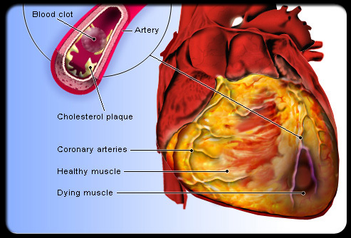 Effects of heart disease on the cardiovascular system