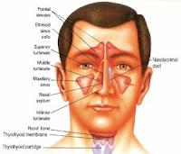 Cara Cepat Mengobati dan Menyembuhkan Penyakit Sinusitis