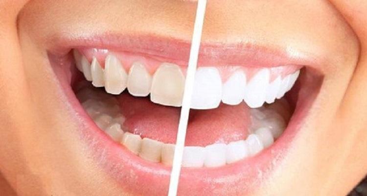وصفة طبيعية لتبيض الأسنان في 60 ثانية فقط