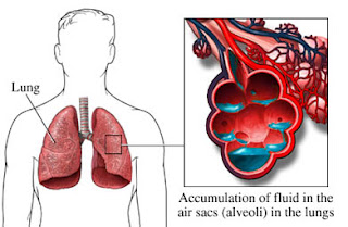 pulmonary edema definition, pulmonary oedema, flash pulmonary edema, acute pulmonary edema, pulmonary edema symptoms, pulmonary edema causes, pulmonary edema treatment, lung edema, altitude pulmonary edema,