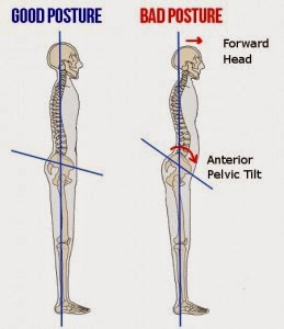 6 Bad Postures That Are Ruining Your Health & How To Correct Them - Anterior Pelvic Tilt