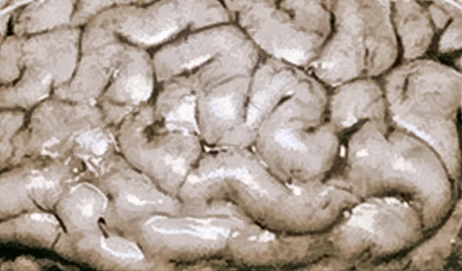 7 Pemicu Kerusakan Otak