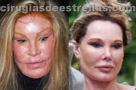 Antes y después de Jocelyn Wildenstein