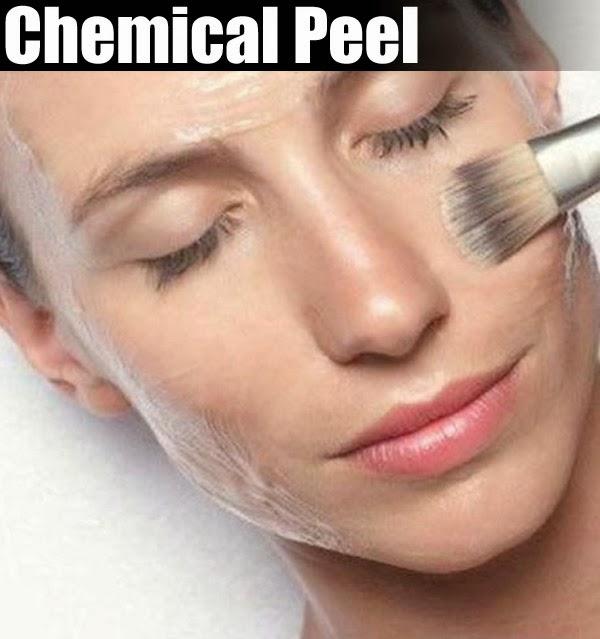 chemical-peels-anti-aging