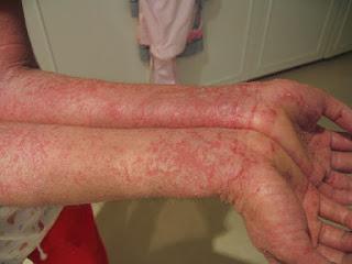 Tại sao viêm da cơ địa ở tay 5 năm vẫn không khỏi?