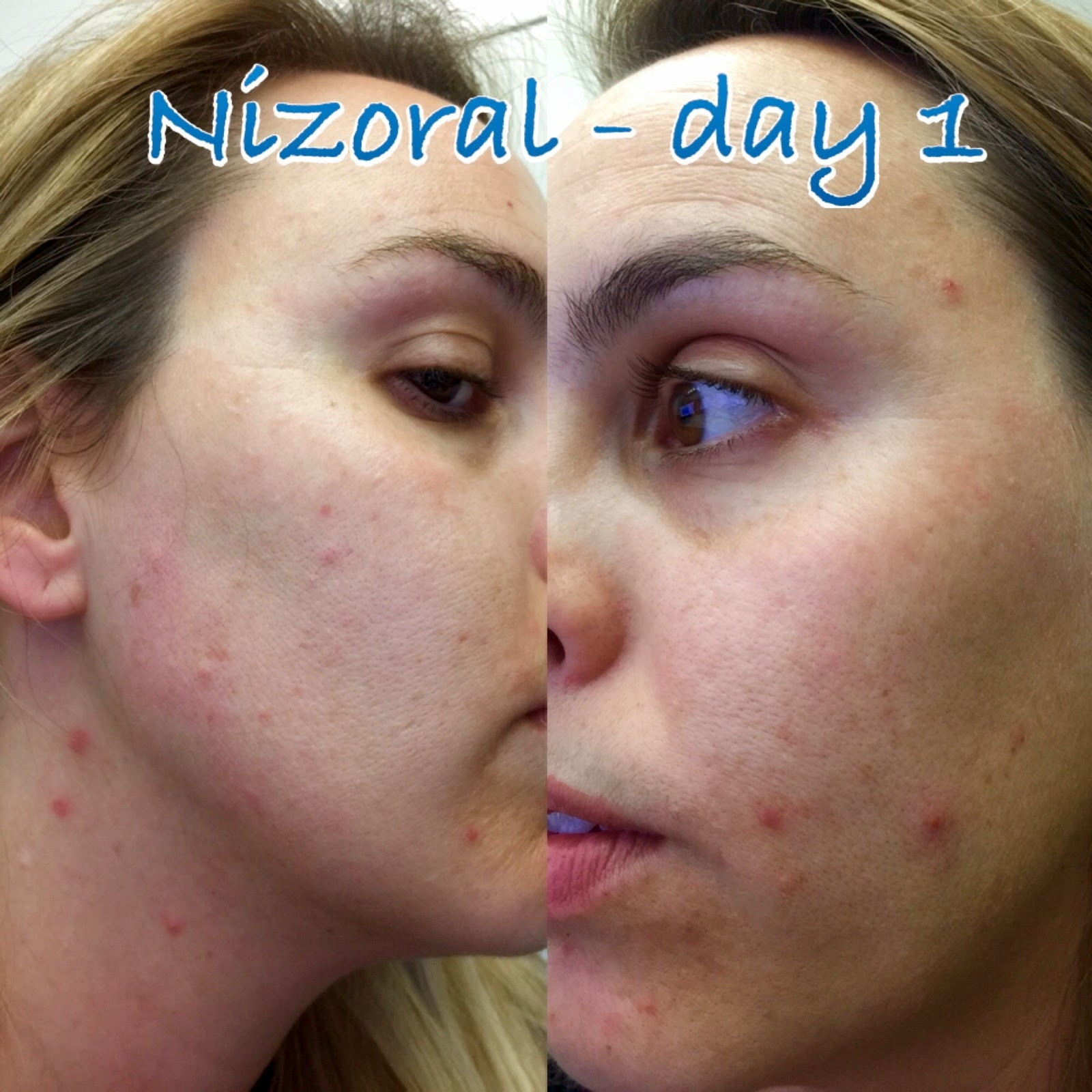 Ketoconazole acne treat