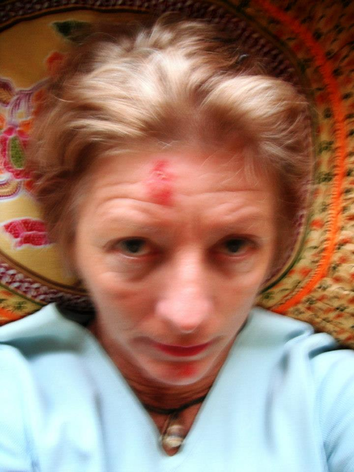 Cold Sores On Forehead Gram Flour or T...