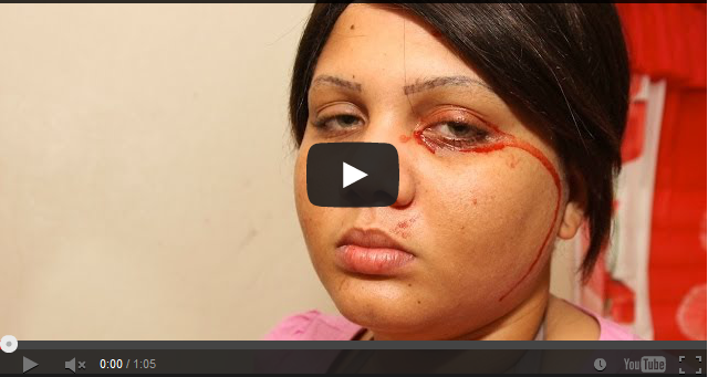 http://omoooduarere.blogspot.com/2013/12/video-woman-who-cries-blood-body_8.html