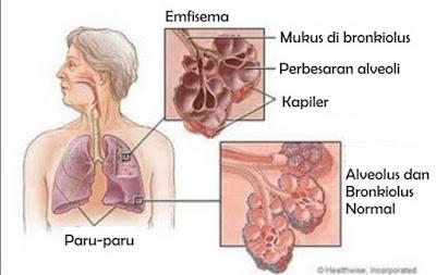 Pengertian penyakit Emfisem, Penyebab, Gejala dan Pencegahan