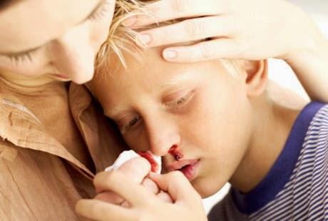 http://dangstars.blogspot.com/2014/11/jika-bukan-hemofilia-mimisan-pada-anak-tidak-akan-berlanjut-hingga-dewasa.html