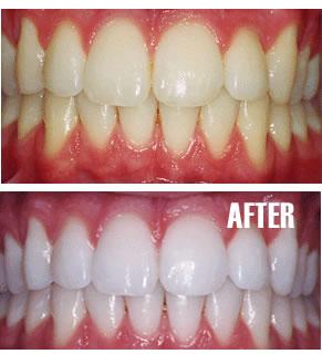 Cara Memutihkan Gigi Dengan 3 Cara Sederhana Artikel Kecantikan