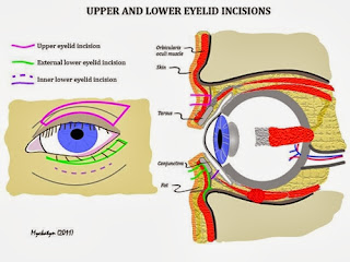 Ptosis Blepharoplasty Procedure