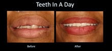 all on 4 austin dental implant center