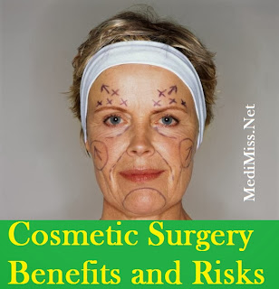 Cosmetic Surgery-Benefits and Risks