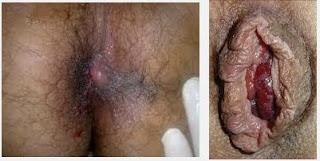 Obat Untuk Gatal Wasir