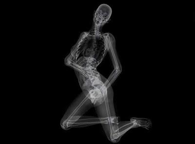 X Ray Film