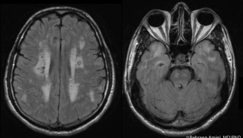 roentgen ray reader  cerebral autosomal dominant