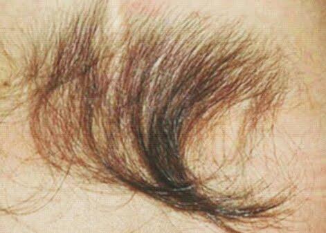 Как сделать чтобы на спине не росли волосы