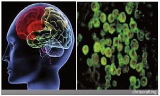info teknologi, pemindai otak