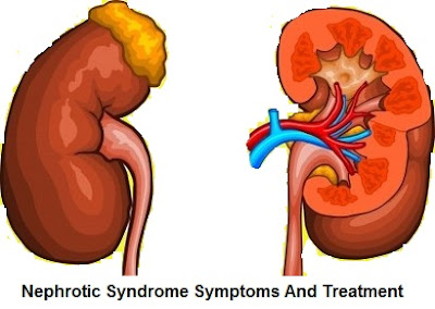 Nephrotic Syndrome Symptoms And Treatment