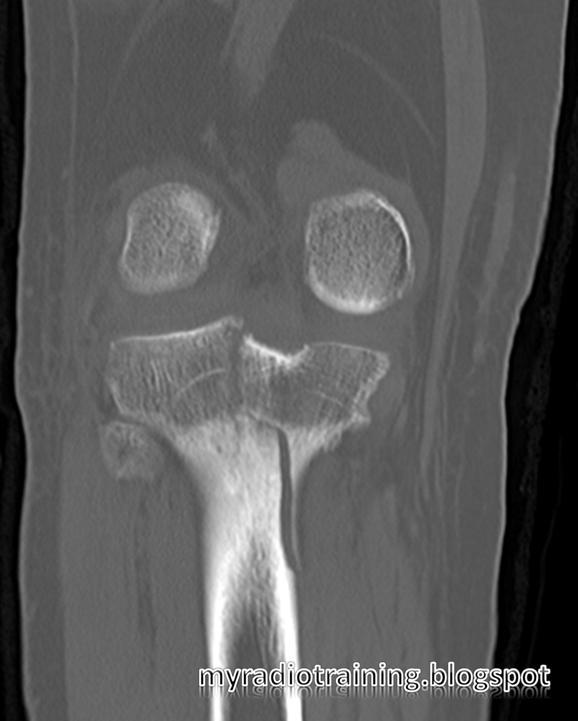 Radiology info hub proximal tibial fracture schatzker - Tibial plafond fracture classification ...