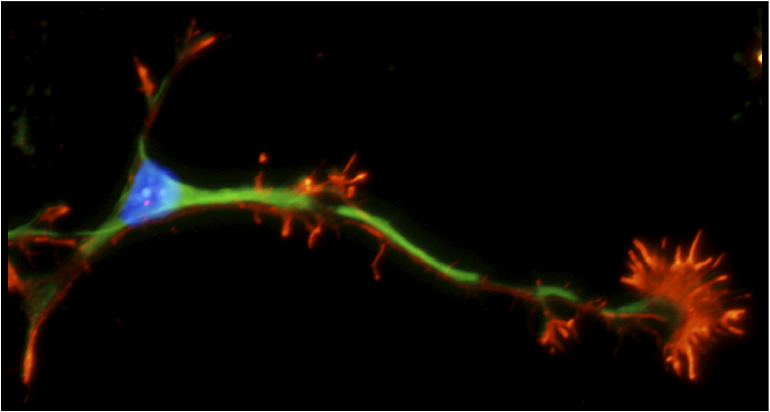 Drug May Jump Start Communication In >> Jump Starting Regeneration Of Injured Nerves